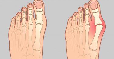 L'oignon de pieds: comment le traiter naturellement